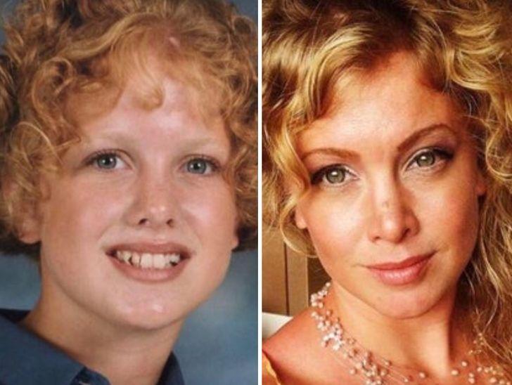 puberty glow ups
